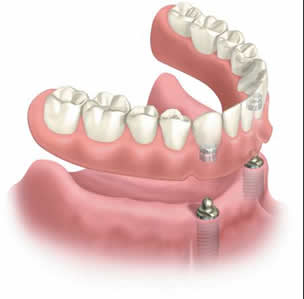 implant-supported-denture1