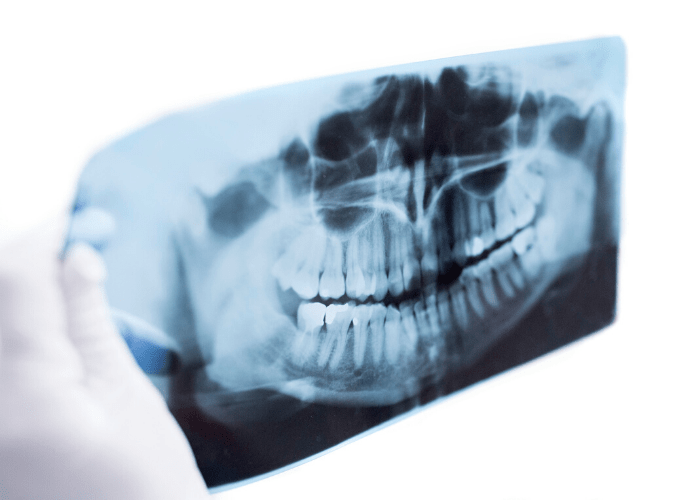 Root Canal X-Ray