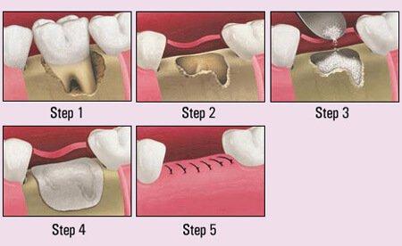 bone graft examples