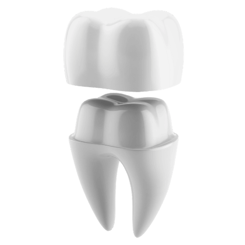 crown-fitting-over-tooth-example