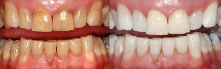 before and after teeth whitening lasalle il